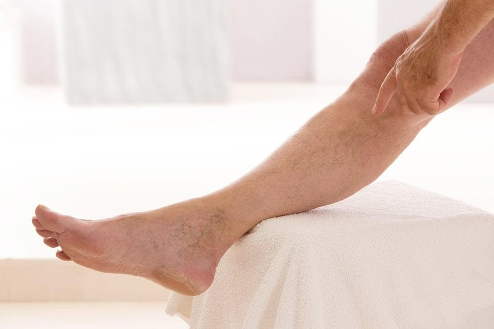 Obrzęk limfatyczny, lipidowy i żylny – przyczyny, objawy i metody leczenia