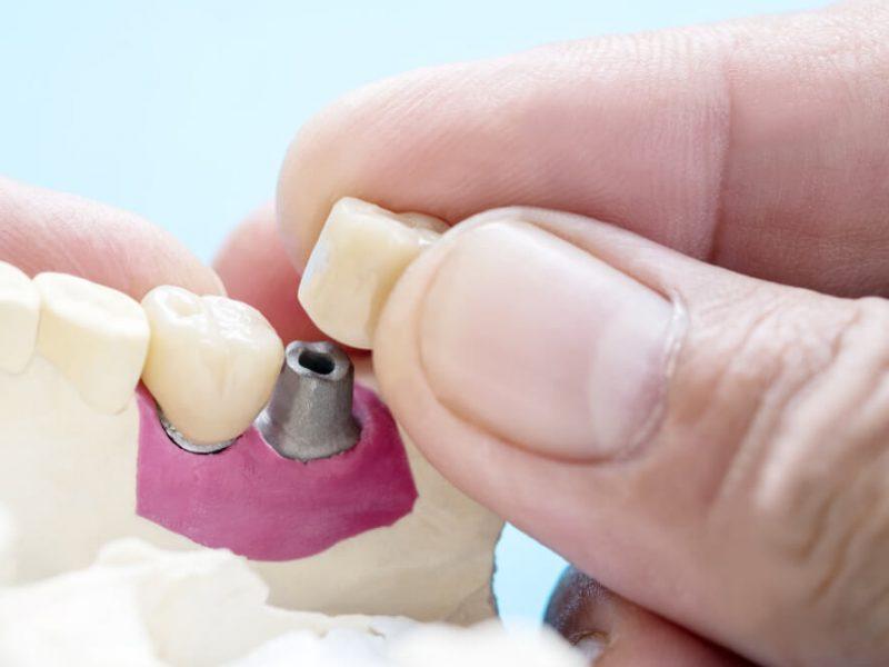 Implant czy most protetyczny – na co się zdecydować?