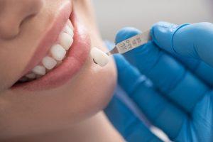 Implanty zębowe – od czego uzależnione jest powodzenie zabiegu?